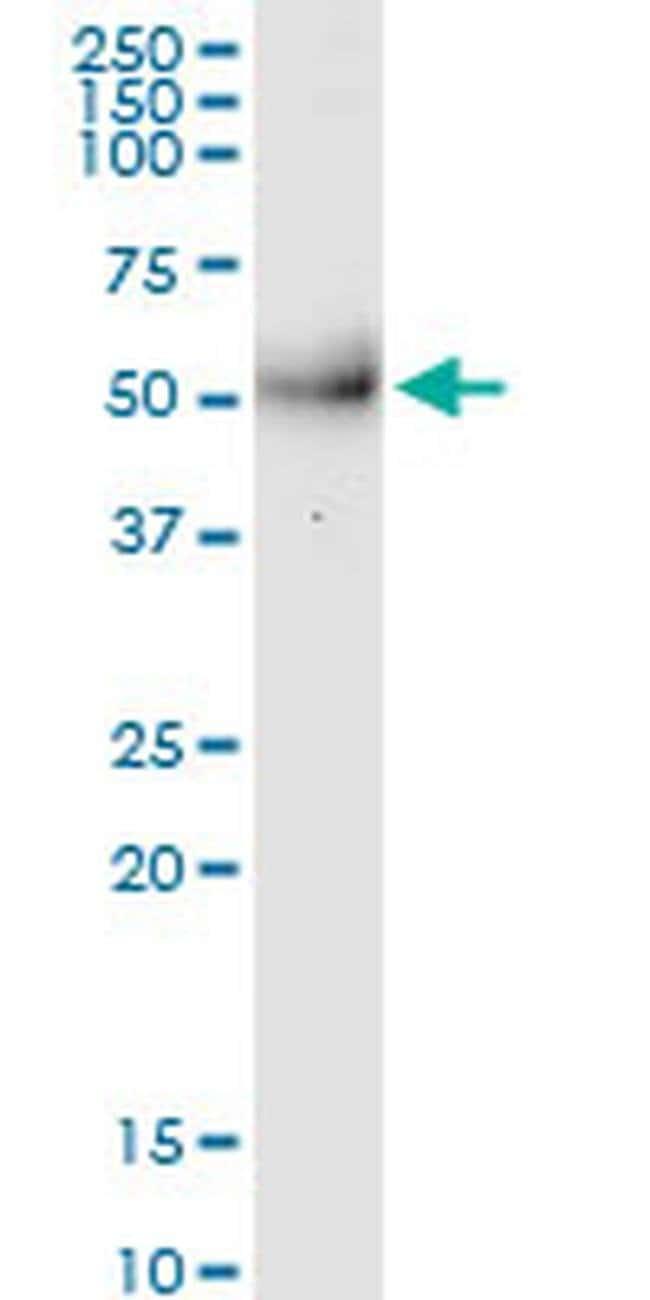 MPPE1 Mouse anti-Human, Clone: 3E4, Invitrogen 100 µg; Unconjugated