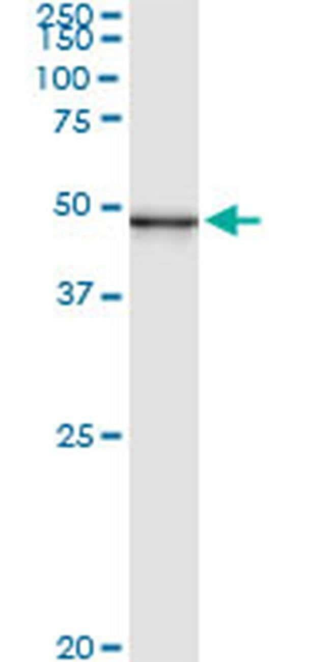 PUS1 Mouse anti-Human, Clone: 3A3, Invitrogen 100 µg; Unconjugated