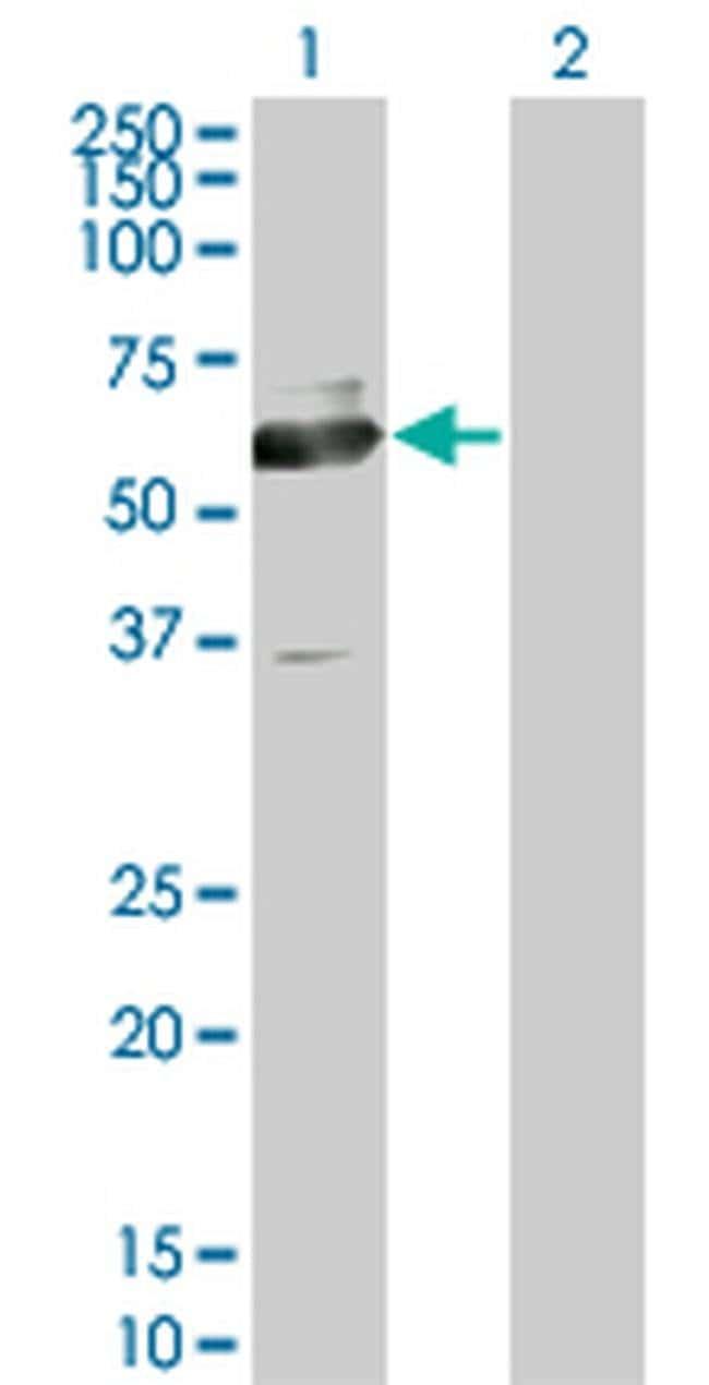 ACCS Mouse anti-Human, Clone: 1D2, Invitrogen 100 µg; Unconjugated