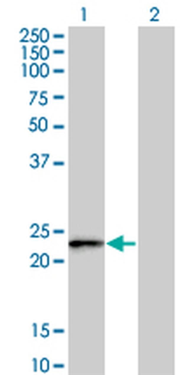 FBXO36 Mouse anti-Human, Clone: 3D3, Invitrogen 100 µg; Unconjugated