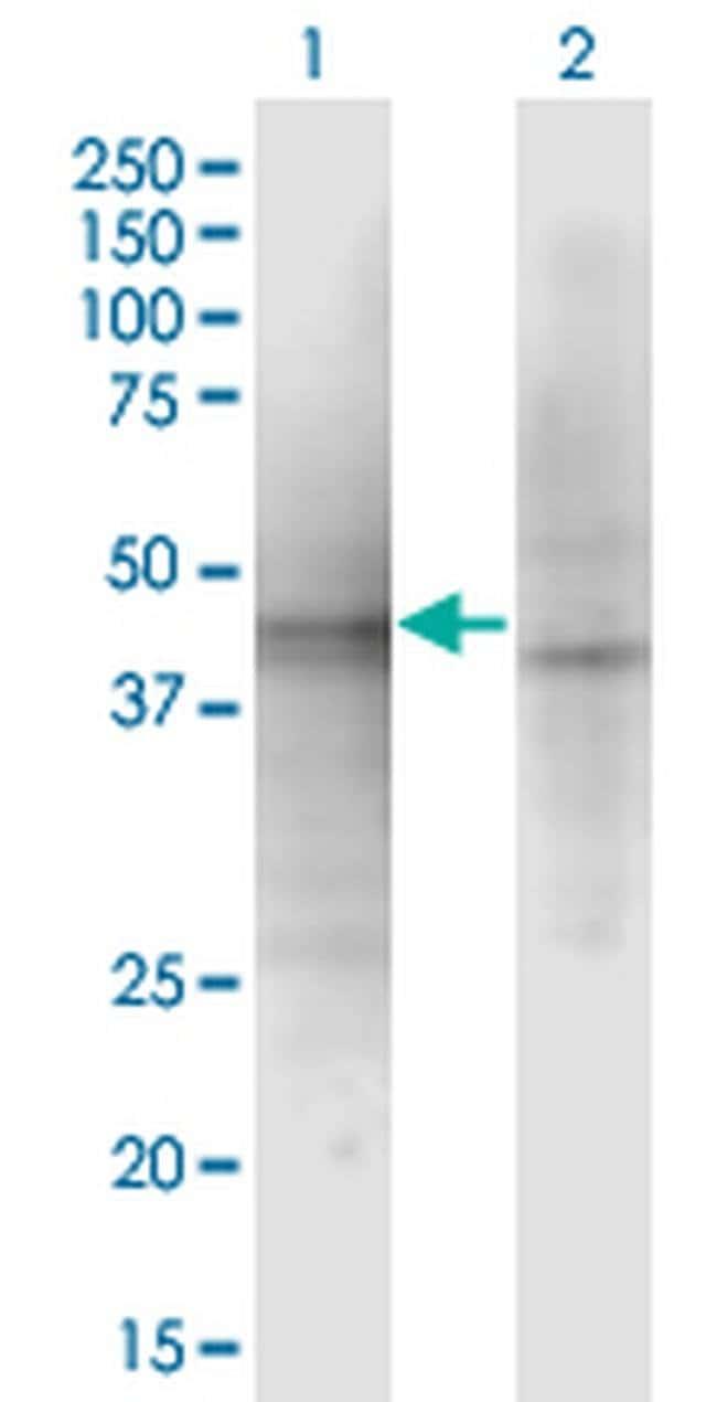 ALP1 Mouse anti-Human, Clone: 3C9, Invitrogen 100 µg; Unconjugated