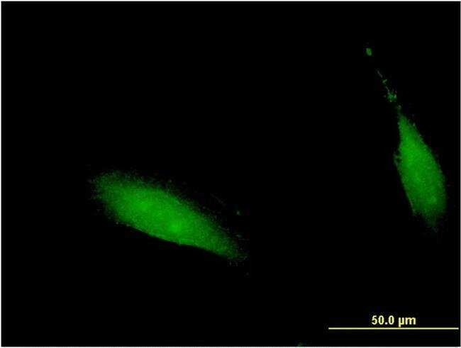 CENPV Mouse anti-Human, Clone: 1D9, Invitrogen 100 µg; Unconjugated