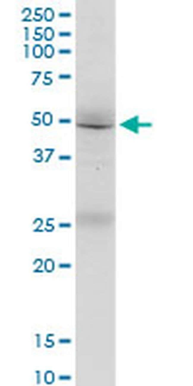 FMN1 Mouse anti-Human, Clone: 4F4, Invitrogen 100 µg; Unconjugated