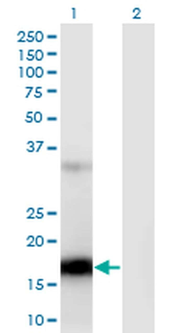 ZCCHC13 Mouse anti-Human, Clone: 4G11, Invitrogen 100 µg; Unconjugated