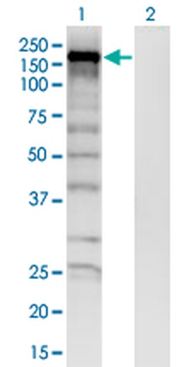 SKIV2L Mouse anti-Human, Clone: 1E5, Invitrogen 200 µL; Unconjugated