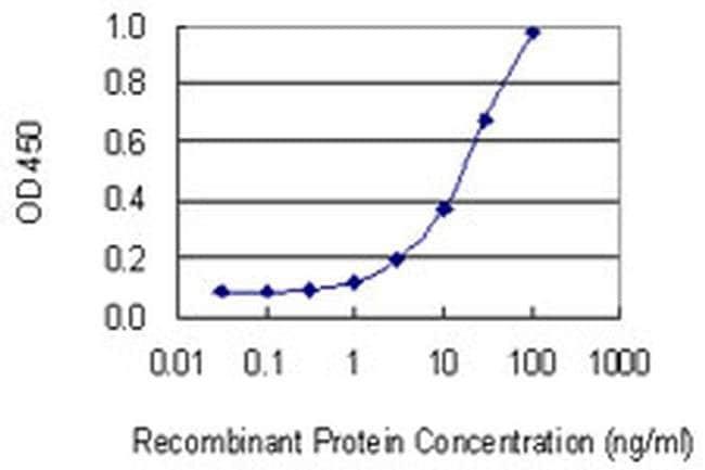 CSAD Mouse anti-Human, Clone: 2C11, Invitrogen 50 µg; Unconjugated