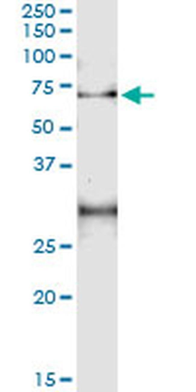 CLN2 Mouse anti-Human, Clone: 1C11-1A7, Invitrogen 100 µg; Unconjugated