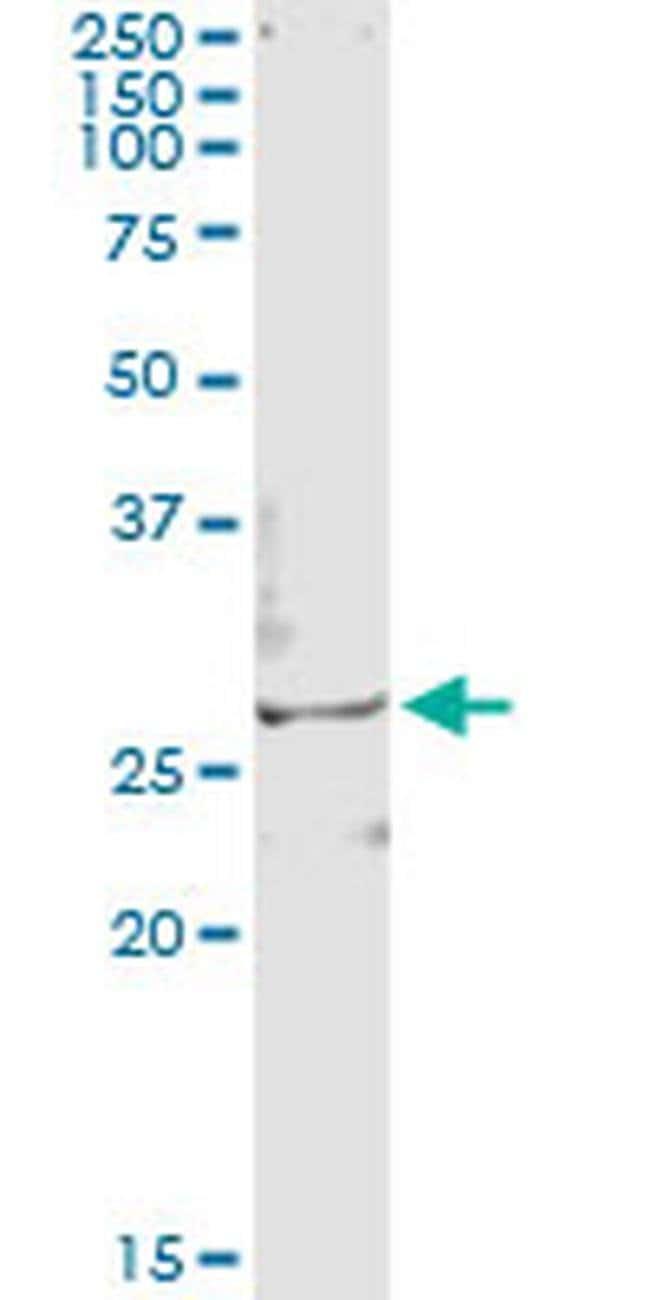 TSSK3 Mouse anti-Human, Clone: 3F9, Invitrogen 100 µg; Unconjugated
