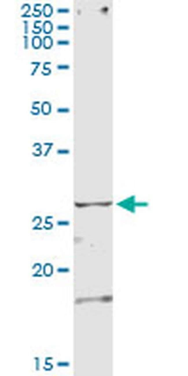 TSSK3 Mouse anti-Human, Clone: 6H4, Invitrogen 100 µg; Unconjugated