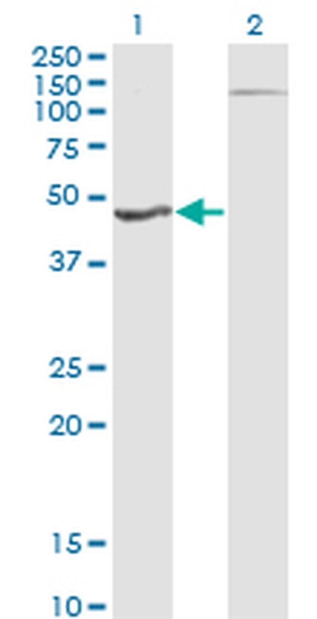 HGD Mouse anti-Human, Clone: 1F1, Invitrogen 100 µg; Unconjugated