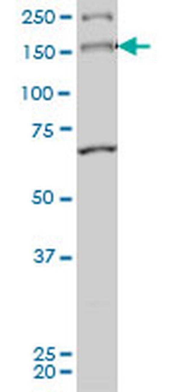 MYO3A Mouse anti-Human, Clone: 8D12, Invitrogen 50 µg; Unconjugated