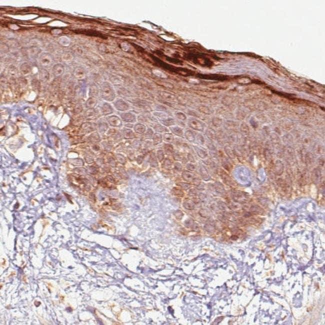 RNASE7 Mouse anti-Human, Clone: CL0224, Invitrogen 100 µL; Unconjugated