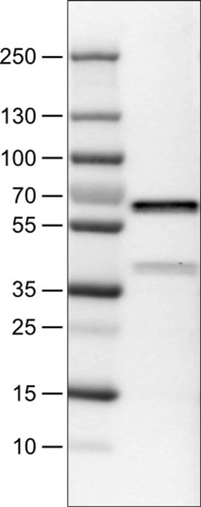 VANGL1 Mouse anti-Human, Clone: CL0241, Invitrogen 100 µL; Unconjugated