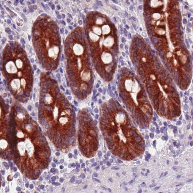ACSL5 Mouse anti-Human, Clone: CL0275, Invitrogen 100 µL; Unconjugated