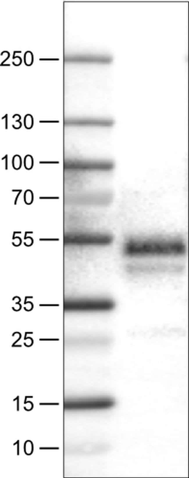 Carbonic Anhydrase XII Mouse anti-Human, Clone: CL0278, Invitrogen 100
