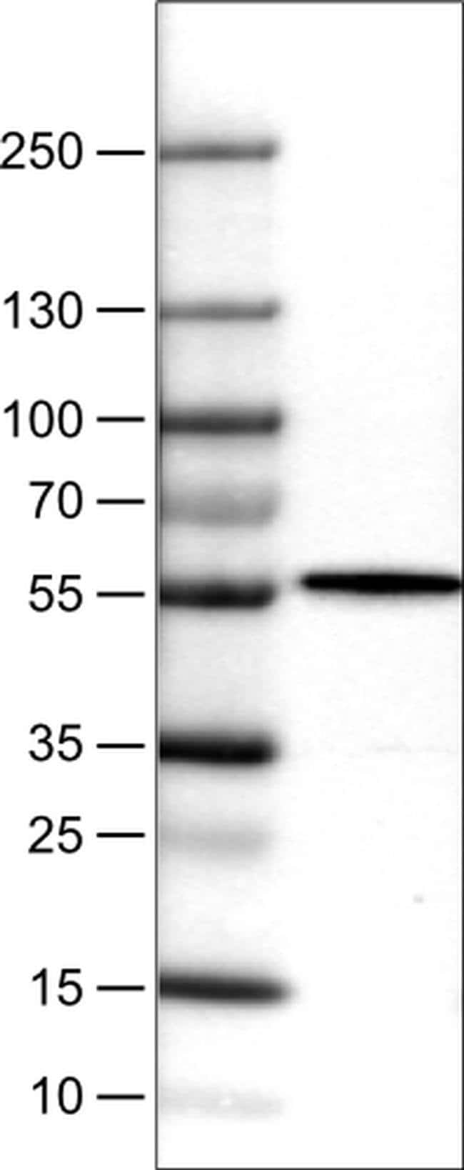 NAPRT1 Mouse anti-Human, Clone: CL0366, Invitrogen 100 µL; Unconjugated