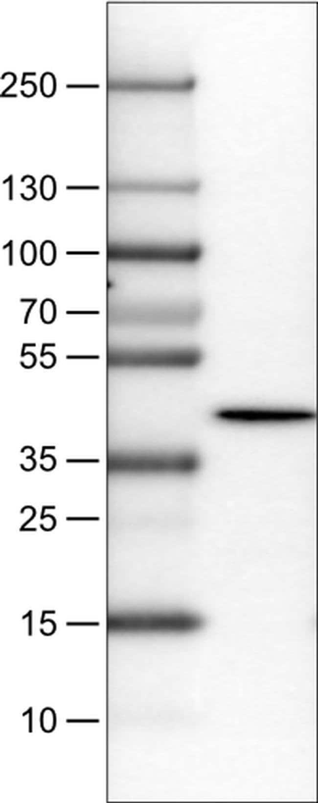 NECAB1 Mouse anti-Human, Clone: CL0575, Invitrogen 100 µL; Unconjugated