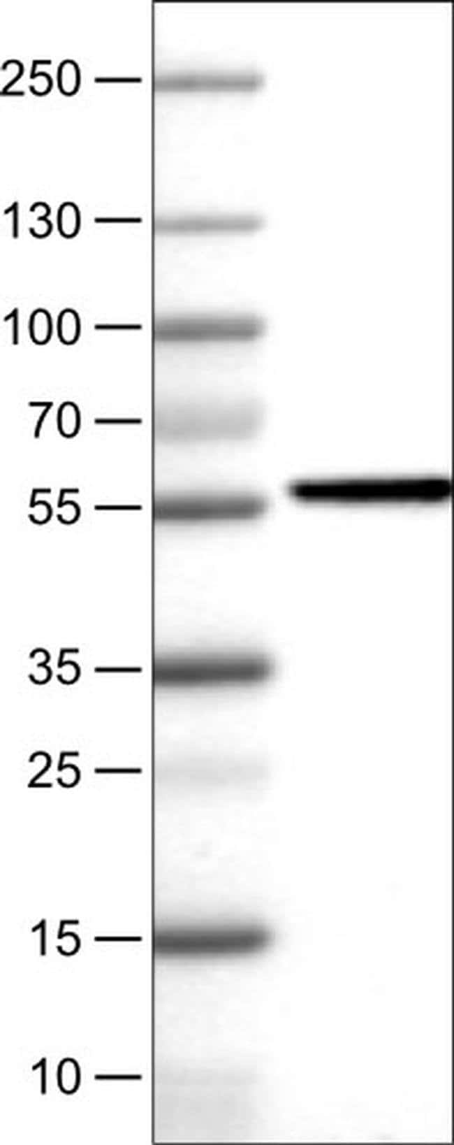 NAPRT1 Mouse anti-Human, Clone: CL0665, Invitrogen 100 µL; Unconjugated