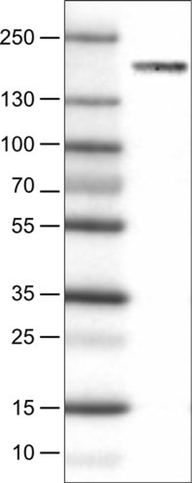 NSD2 Mouse anti-Human, Clone: CL1063, Invitrogen 100 µL; Unconjugated