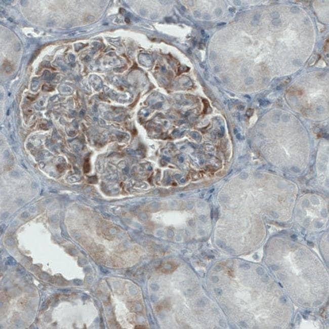 DIAPH2 Mouse anti-Human, Clone: CL1113, Invitrogen 100 µL; Unconjugated