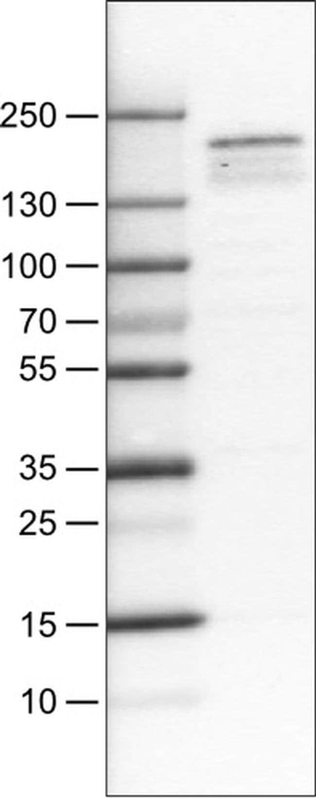 KDM5B Mouse anti-Human, Clone: CL1147, Invitrogen 100 µL; Unconjugated