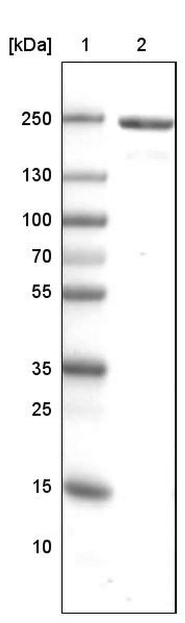 MYH6 Mouse anti-Human, Clone: CL2148, Invitrogen 100 µL; Unconjugated
