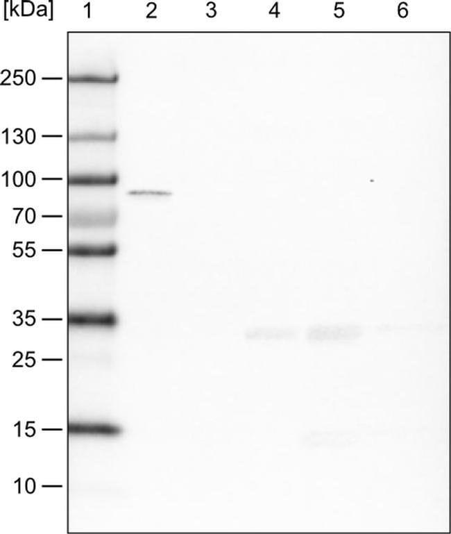 CARS Mouse anti-Human, Clone: CL2302, Invitrogen 100 µL; Unconjugated
