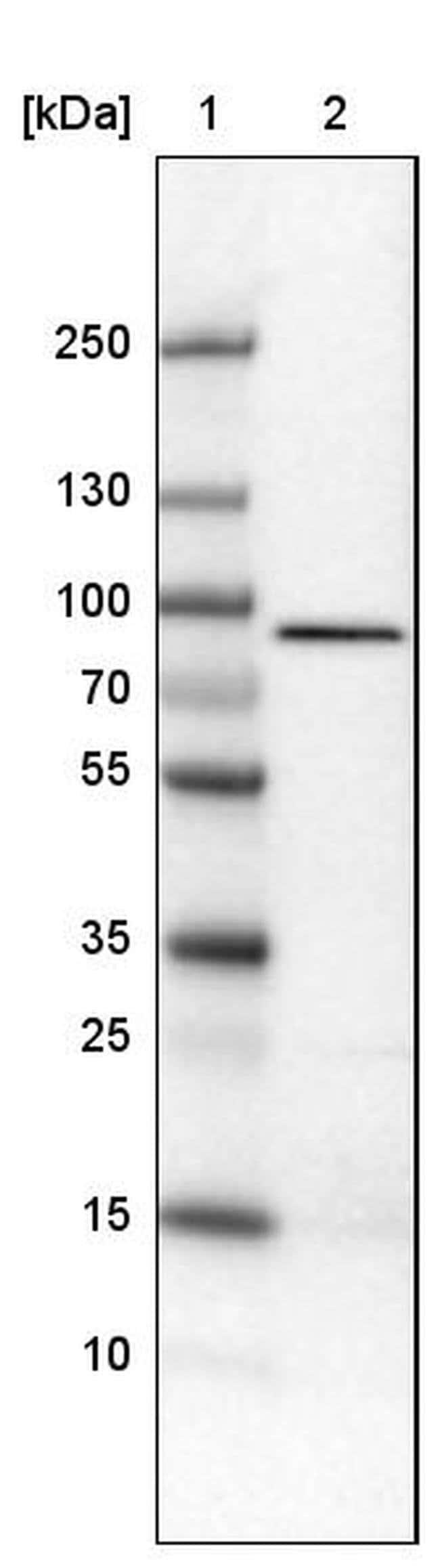 CARS Mouse anti-Human, Clone: CL2304, Invitrogen 100 µL; Unconjugated