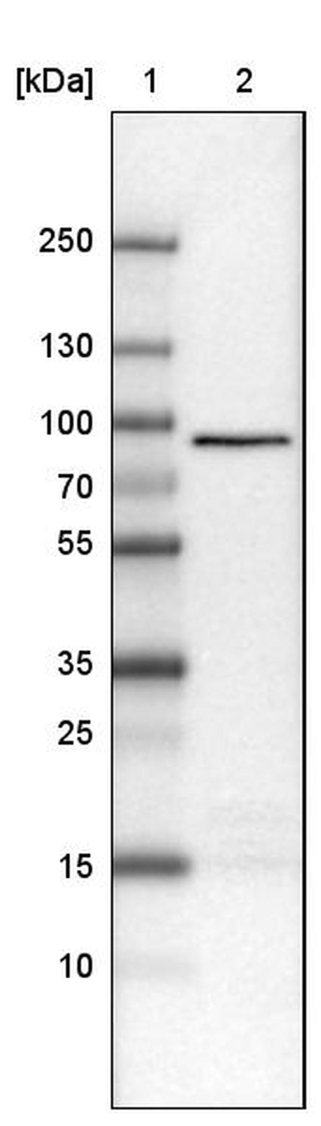 CARS Mouse anti-Human, Clone: CL2310, Invitrogen 100 µL; Unconjugated