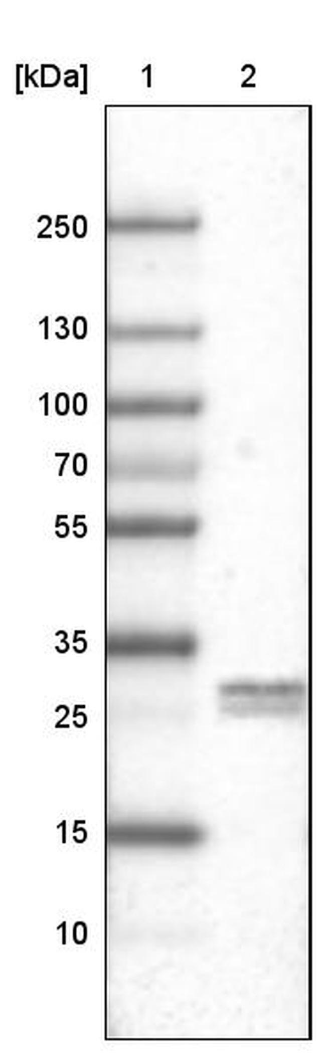 LY6K Mouse anti-Human, Clone: CL2433, Invitrogen 100 µL; Unconjugated