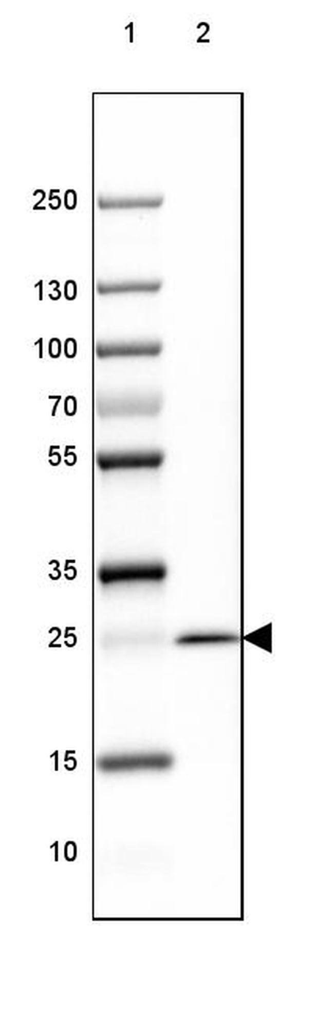 MOG Mouse anti-Human, Mouse, Rat, Clone: CL2852, Invitrogen 100 µL;
