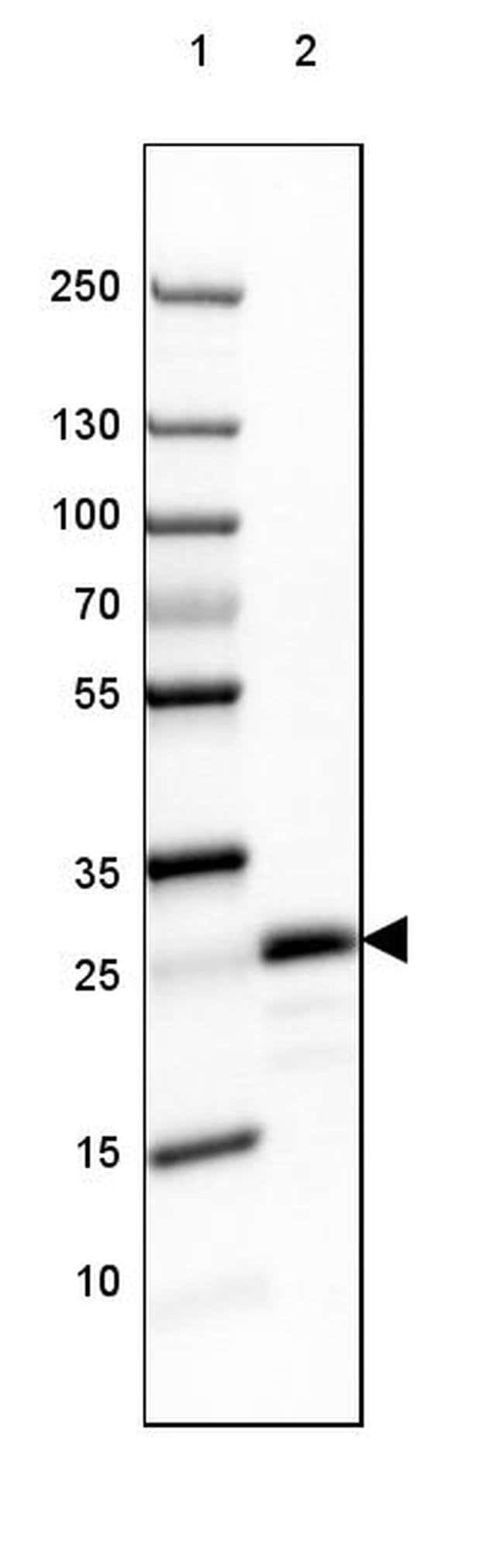 MOG Mouse anti-Human, Mouse, Rat, Clone: CL2858, Invitrogen 100 µL;