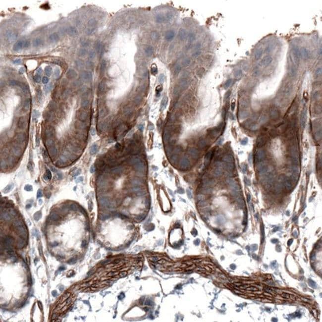 Laminin alpha-4 Mouse anti-Human, Mouse, Clone: CL3185, Invitrogen 100