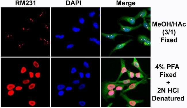 5-Methylcytosine Rabbit anti-Human, Invitrogen 50 µg; Unconjugated