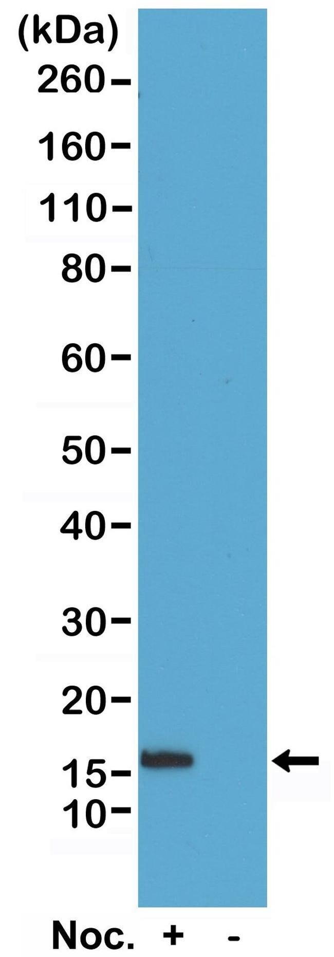 Phospho-Histone H2B (Ser14) Rabbit anti-Human, Invitrogen 100 µg;