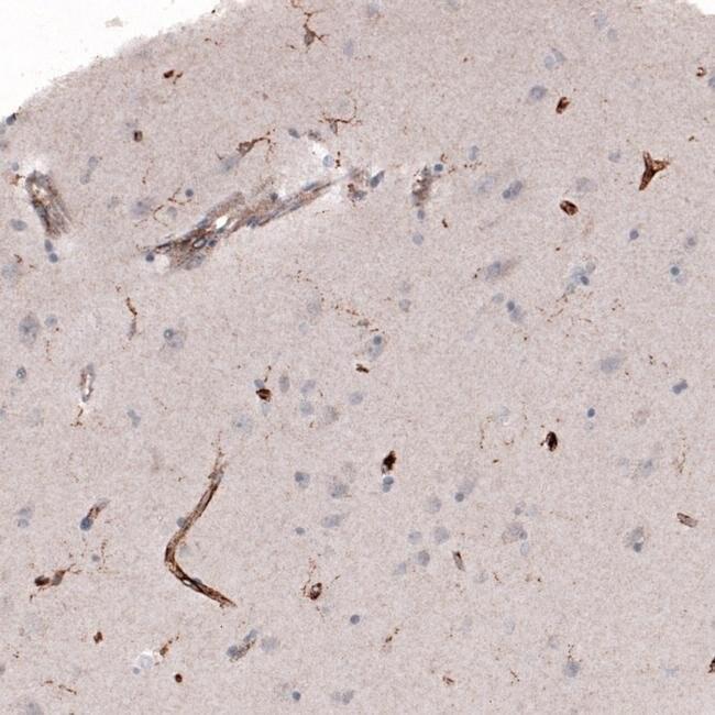VISTA Mouse anti-Human, Clone: CL3975, Invitrogen 100 µL; Unconjugated