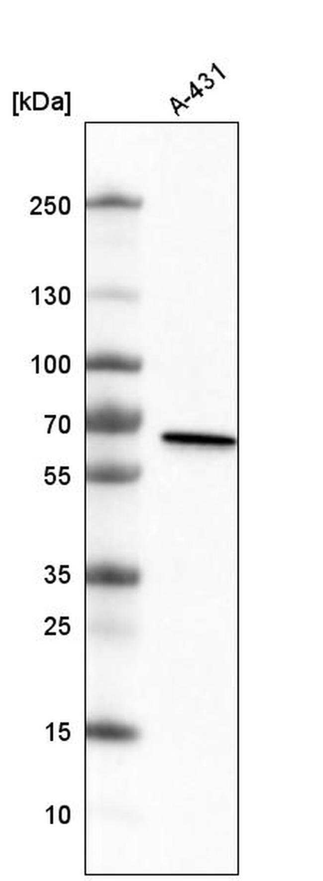 METTL14 Mouse anti-Human, Clone: CL4254, Invitrogen 100 µL; Unconjugated