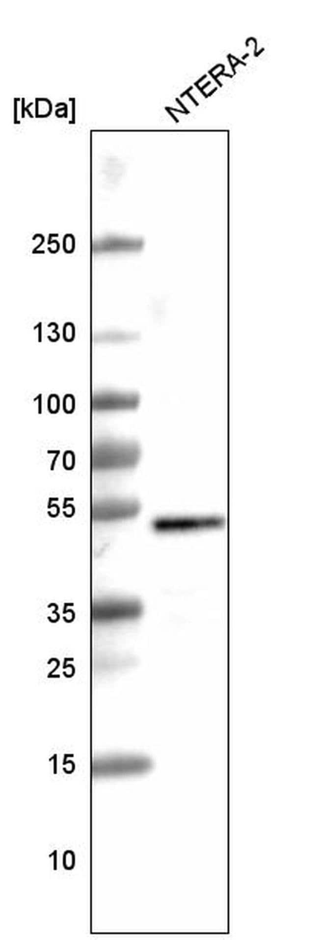SOX3 Mouse anti-Human, Clone: CL4725, Invitrogen 100 µL; Unconjugated