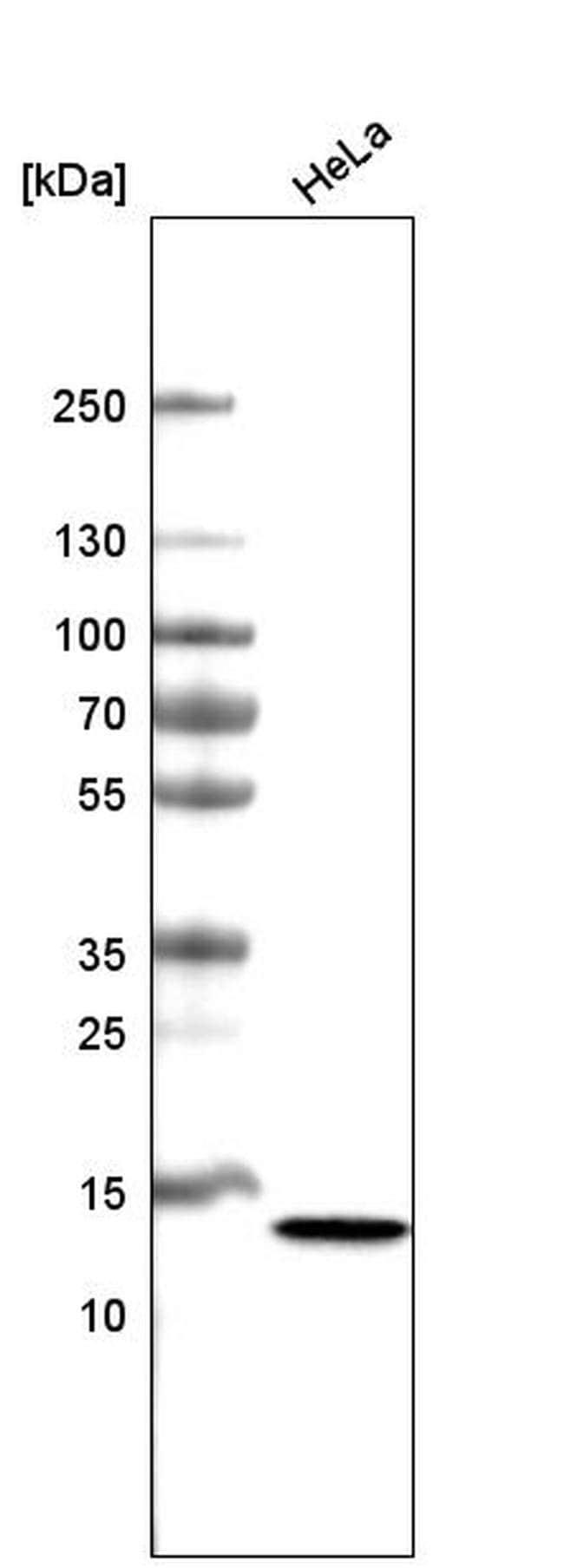CT83 Mouse anti-Human, Clone: CL4762, Invitrogen 100 µL; Unconjugated