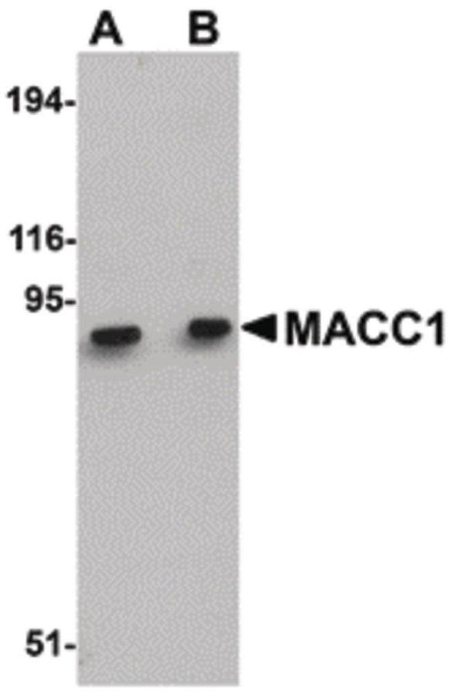 MACC1 Rabbit anti-Human, Mouse, Rat, Polyclonal, Invitrogen 100 µg;