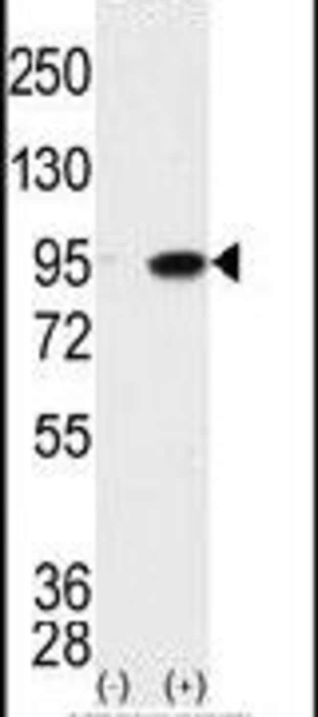 MAK Rabbit anti-Human, Polyclonal, Invitrogen 400 µL; Unconjugated