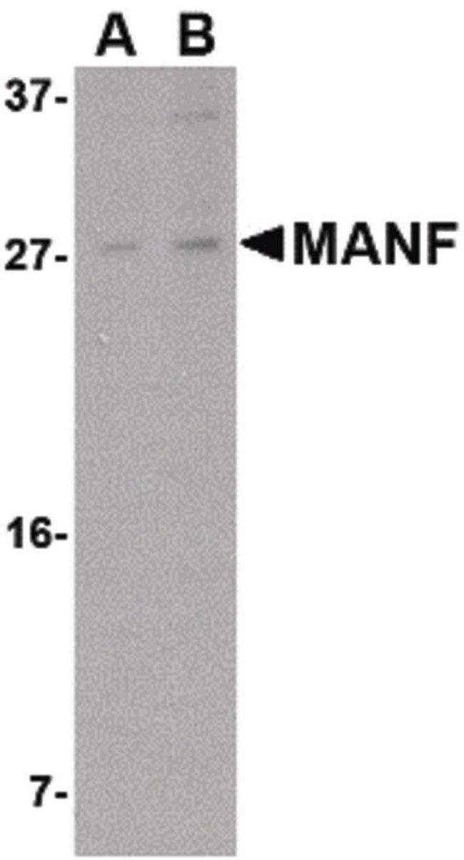 ARMET Rabbit anti-Human, Mouse, Rat, Polyclonal, Invitrogen 100 µg;