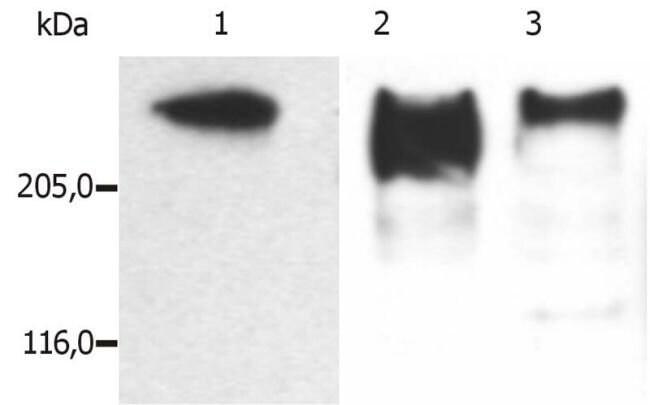 MAP2 Mouse anti-Human, Mouse, Porcine, Clone: MT-07, Invitrogen 100 µg;