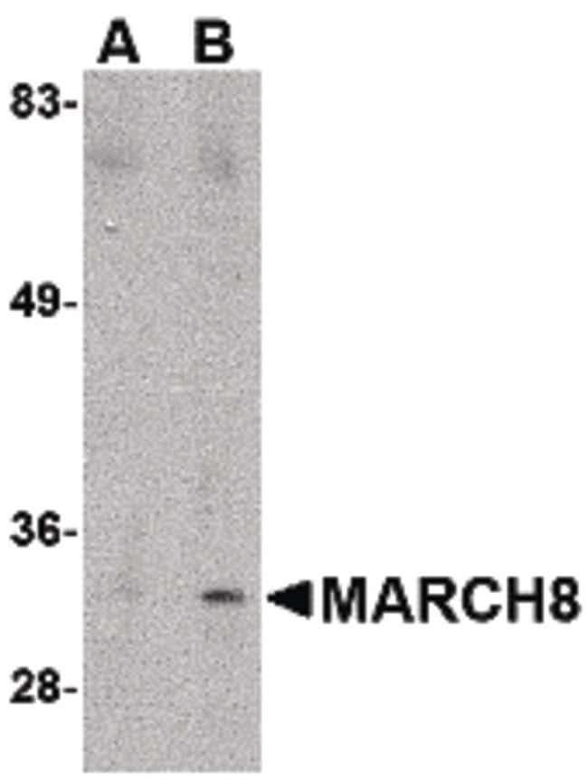 MARCH8 Rabbit anti-Human, Mouse, Rat, Polyclonal, Invitrogen 100 µg;