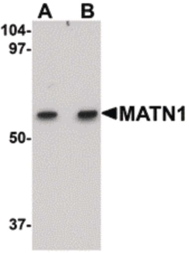 MATN1 Rabbit anti-Human, Mouse, Rat, Polyclonal, Invitrogen 100 µg;