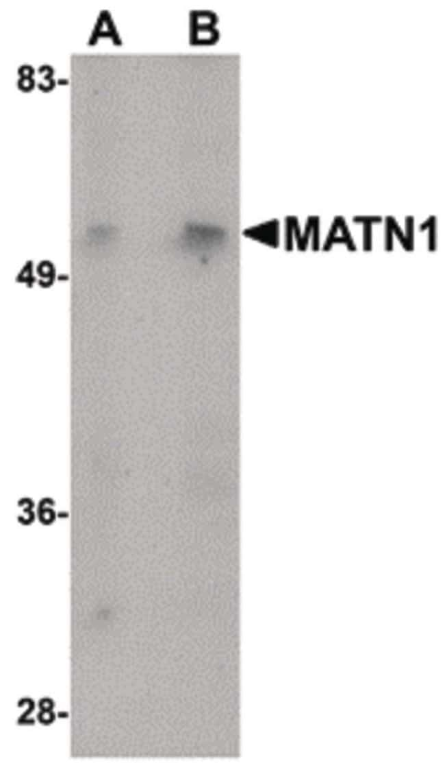 MATN1 Rabbit anti-Human, Mouse, Rat, Polyclonal, Invitrogen 100 µg;