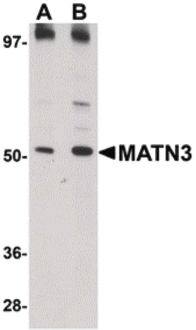 MATN3 Rabbit anti-Human, Mouse, Rat, Polyclonal, Invitrogen 100 µg;