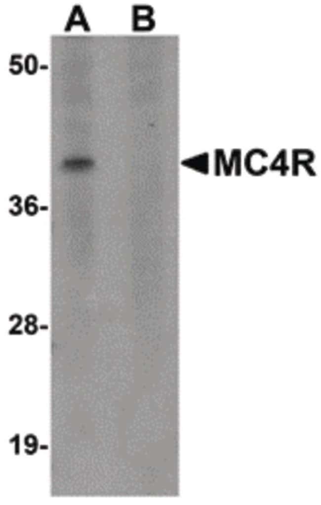 MC4R Rabbit anti-Human, Mouse, Rat, Polyclonal, Invitrogen 100 µg;