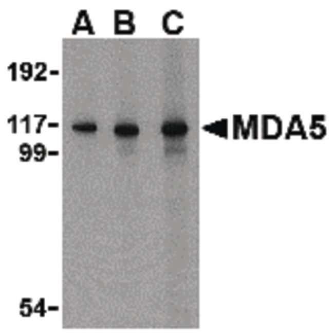 MDA5 Rabbit anti-Human, Polyclonal, Invitrogen 100 µg; Unconjugated