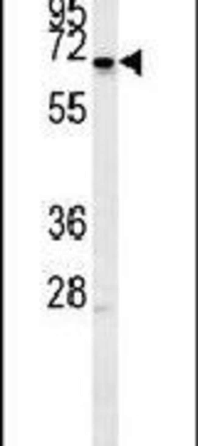 MEIS2 Rabbit anti-Human, Polyclonal, Invitrogen 400 µL; Unconjugated